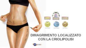 Criolipolisi-Trattamento della cellulite e del sovrappeso-Laseraging-Ferrara