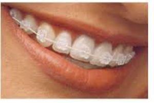 Servizi di Terapia ortodontica – Venezia – Santa Maria di Sala, Ronchi, Pelosa – Dentiamo Santa Maria di Sala